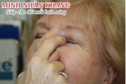 Ấn nhẹ vào góc trong mắt sẽ giúp thuốc nhỏ mắt lâu trôi